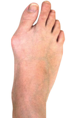 Osteotomy Bunion Before Surgery - University Foot and Ankle Institute