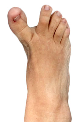 Revision hallux Varus Before Picture, University Foot and Ankle Institute