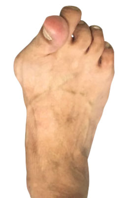 Bunion Surgery Before Picture, UFAI, Lapidus Bunionectomy