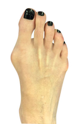Bunion and Tailors Bunion Surgery Before Picture, University Foot and Ankle Institute