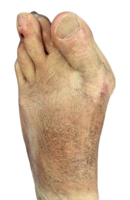 Bunion Revision Surgery Before Picture, University Foot and Ankle Institute