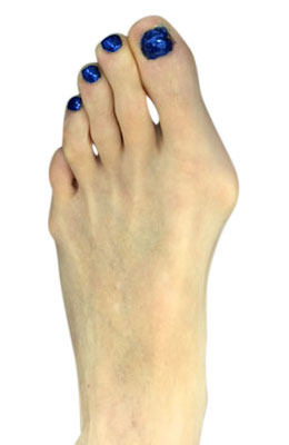 Bunion Correction Surgery - Osteotmoy Bunionectomy - Before Picture