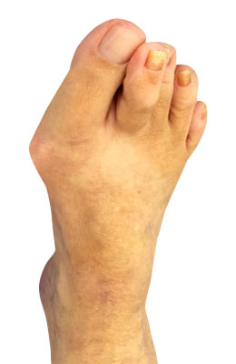 Bunion Correction and Hammertoe Surgery Before Picture, University Foot And Ankle Surgery