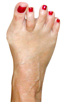 Bunion with Crossover Before Surgery - University Foot and Ankle Institute