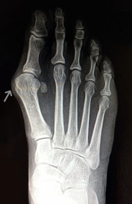 Lapidus Bunionectomy, Hammertoe Correction, Osteotomy Tailors Bunion Surgery Before, UFAI