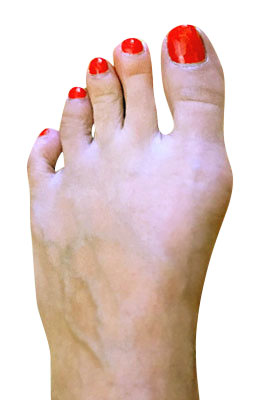 Bunion Correction with Lapidus Procedure Before Picture, University Foot and Ankle Institue