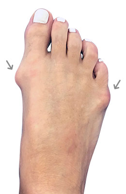 Hammertoe Correction with Bunion Correction Before Surgery Picture