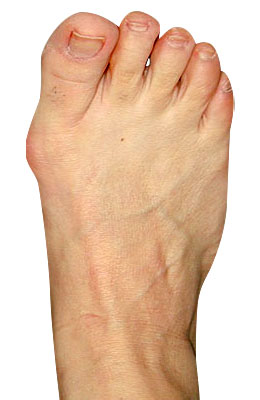 Bunion, Lapidus Bunionectomy Before Surgery - University Foot and Ankle Institute