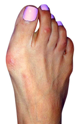 Bunion Before Surgery - University Foot and Ankle Institute