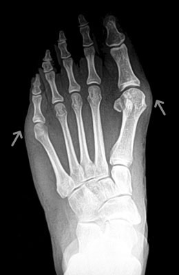 Lapidus Bunionectomy with Weil Procedure Before Surgery - Univeristy Foot and Ankle Institute