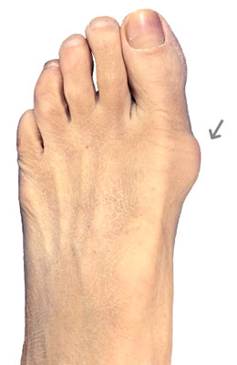 Bunionectomy Before image, University Foot and Ankle Institute