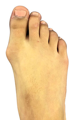 Pediatric bunion surgery, lapidus bunionectomy, before and after picture