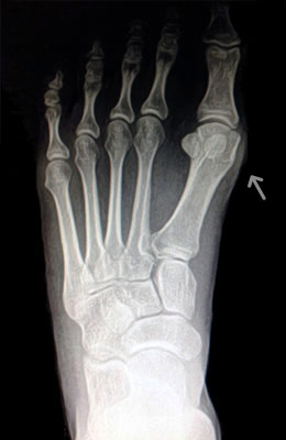 Small Bunion Before Surgery - University Foot and Ankle Institute