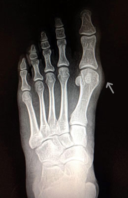 Medium Bunion Before Surgery - University Foot and Ankle Institute