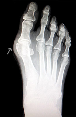 Austin Bunionectomy with Akin Procedure Before Surgery - University Foot and Ankle Institute