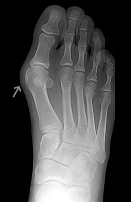 Bunion Before Surgery, Lapidus Bunionectomy - University Foot and Ankle Institute