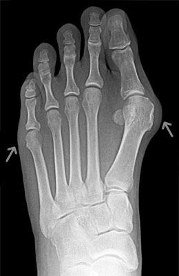 Tightrope Procedure and Osteotomy Tailors Bunion Before Surgery - University Foot and Ankle Institut