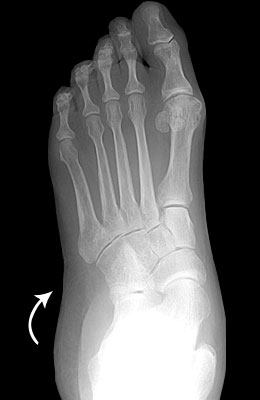 Flat Foot Before Surgery - University Foot and Ankle Institute