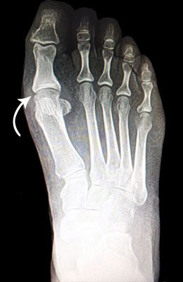 Fusion Before Surgery - University Foot and Ankle Institute