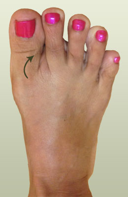 Hammertoe Before Surgery - University Foot and Ankle Institute