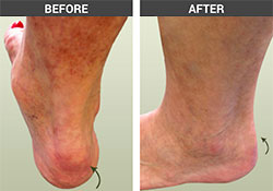 Achilles Spur Before and After - University Foot and Ankle Institute