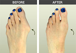Bunion Surgery Before and After Pictures, Los Angeles
