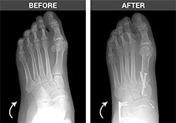 Flat Feet Before and After - University Foot and Ankle Institute