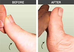 Hallux Limitus - University Foot and Ankle Institute