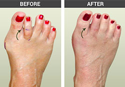 Toe Conditions Before and After - University Foot and Ankle Institute