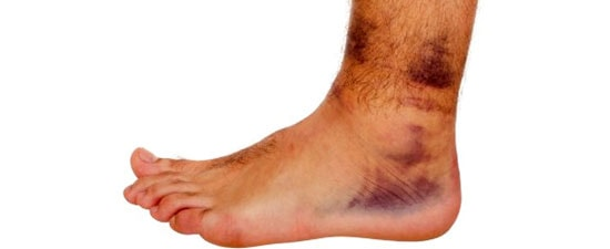Ankle Sprains, When to See an Ankle Specialist