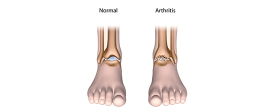 UFAI Offers Monthly Free Seminar Series on Ankle Arthritis