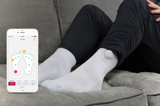 Diabetic Feet: Smart Socks Watch in Real Time for Potential Injuries!