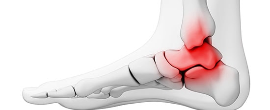 Can Waiting to See a Foot Doctor Today about a Bad Ankle Bring Arthritis Tomorrow? YES!