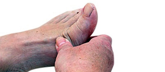 Lumps and Bumps of the Foot: Plantar Fibroma, Ganglion Cyst and More