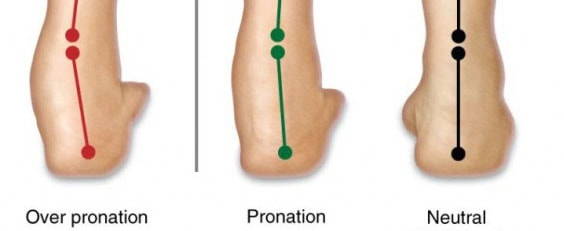 Overpronation: What Is It and How Can You Correct It?