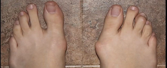 16 Myths About Bunion Surgery Debunked!