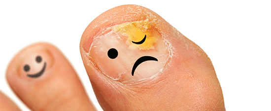 What To Do When Your Toenail Is Falling Off
