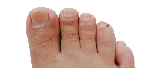 Tips From Our Experts Prevent And Treat Ingrown Toenails At