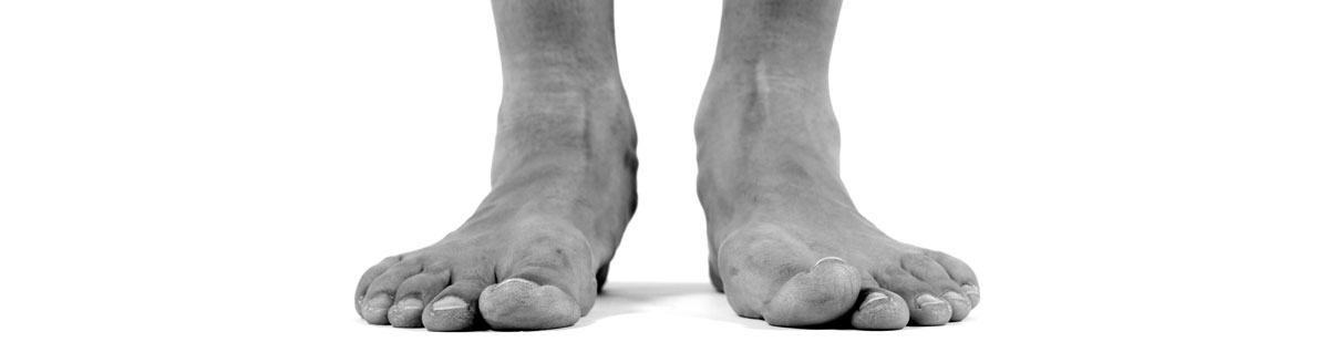What You Need to Know About Flat Feet and Fallen Arches