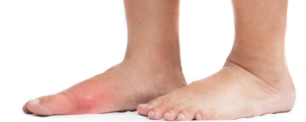 Got Big Toe Bumps and Lumps? Here's 5 Things You Need to Know