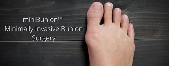 UFAI's state-of-the-art miniBunion™️ minimally invasive bunion surgery. What you need to know.