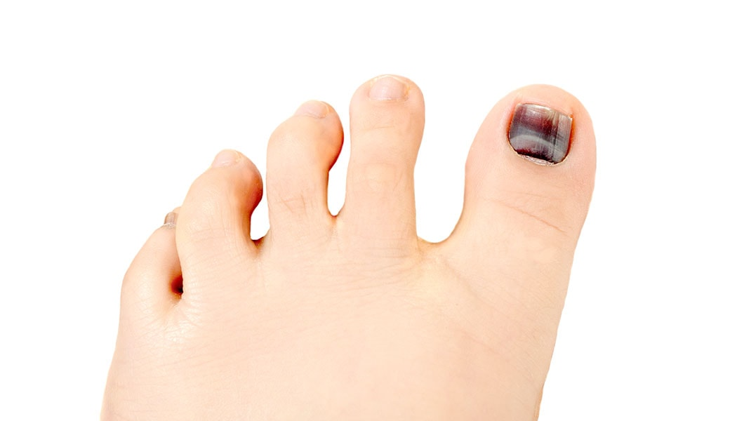 What Causes a Black Toenail? Should You Be Worried?