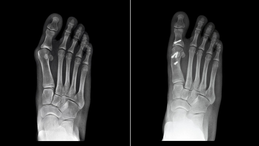 Do Bunion Surgery Techniques Outlive their Usefulness? Yes!