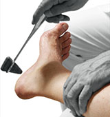 Neuroma and Nerve Pain Los Angeles